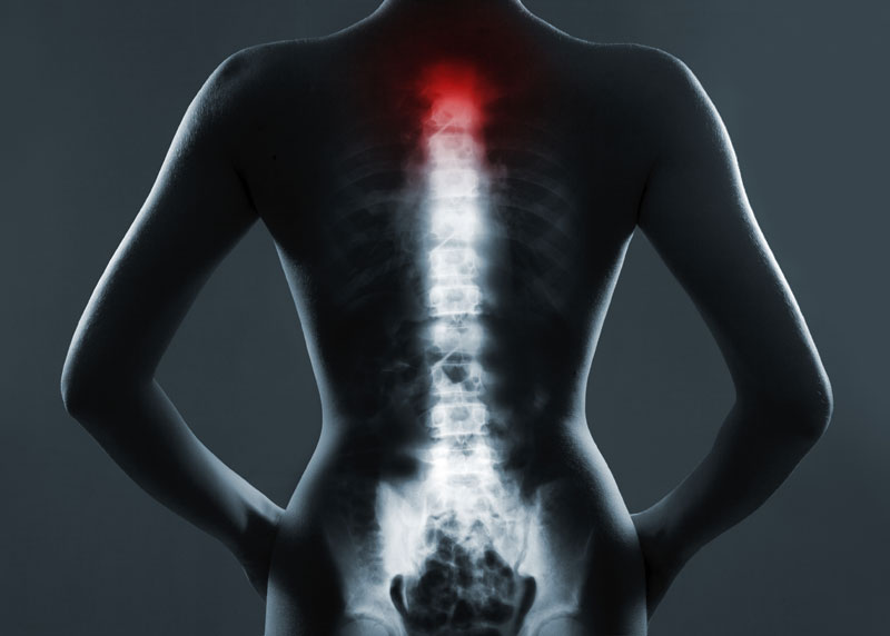 Prayer, Brainpower & Science Miracles spinal cord image
